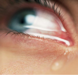 Pink-Eye-Symptoms-Youve-Got-Conjunctivitis